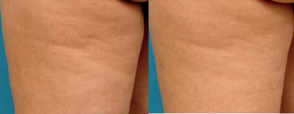 Anti-cellulite cream for firmer younger looking skin
